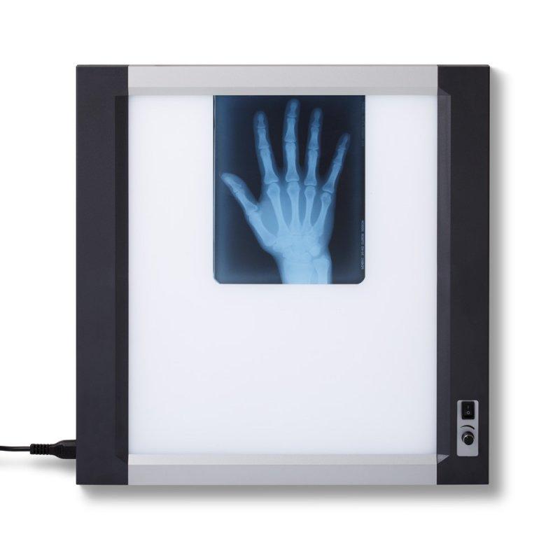 Негатоскоп на 1 снимок с LCD- дисплеем