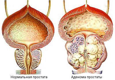 Prostatitis pavlodar)