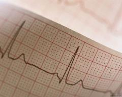 Tapes for the electrocardiogram