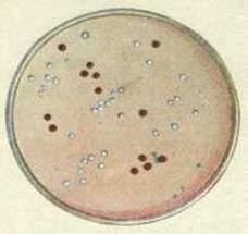 Среда №13 ГРМ (трехсахарный агар с солями железа)