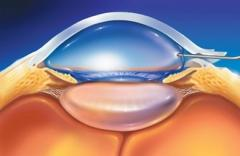 Lentes intraoculares
