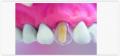 Прозрачные формы для реконструкции коронковой части зуба