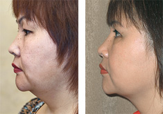 Order Liposuction