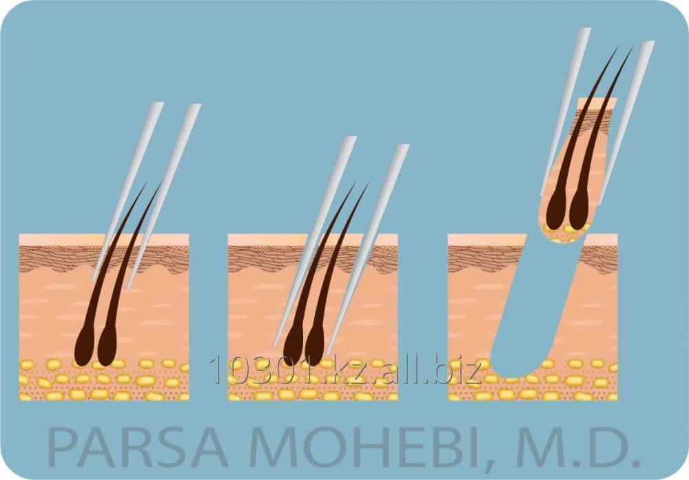 Заказать Пересадка волос без шрама