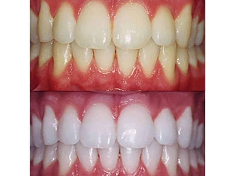Bleaching Of Teeth Of Opalescence In Almaty Order In Almaty