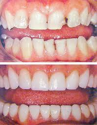 Заказать Пломбирование зубов