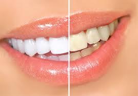 Заказать Лазерное отбеливание зубов