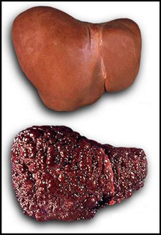 Заказать Диагностика и лечение цирроза печени