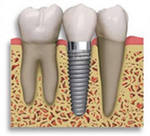 Order Production of tooth implants