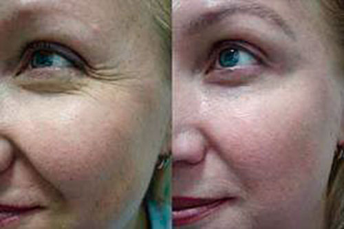 Order Removal of wrinkles by means of Botox