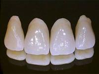 Заказать Изготовление зубных коронок