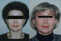 Подтяжка кожи лица, шеи и подбородка