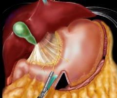 Laparoscopic longitudinal (draining, hose,
