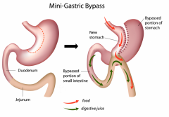 Laparoscopic gastroshuntirovaniye (bypass)