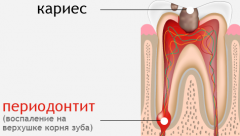Лечение периодонтита двухкорневого зуба