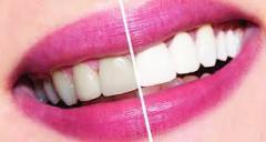 Профессиональная чистка зубов( ультразвуковая )