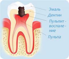 Лечение пульпита в Алматы