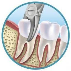 Removal of tooth in Almaty