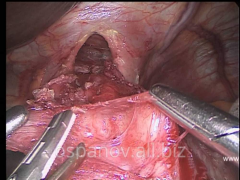 Laparoscopic kardiomiotomiya at a sebesten