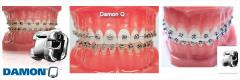 Самолигирующие металлические брекеты «Damon Q»