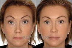 Planimetric Face lifting