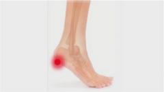 Лечение боли в подошве стопы