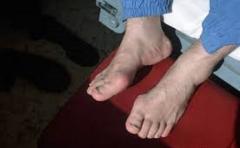 Лечение боли и немения пальцев ног