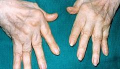 Остеопатия   от боли при сжимании кисти