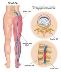 Остеопатия  от ущемления седалищного нерва