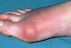 Treatment of gout in Almaty