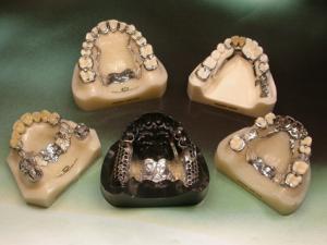 Prosthetics of teeth byugelny