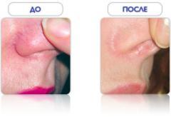 Лечение сосудистых патологий кожи лазером