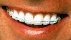 Выравнивание зубного ряда в Алматы