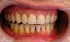 Зуботехнические работы в Алматы