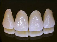 Production of tooth crowns