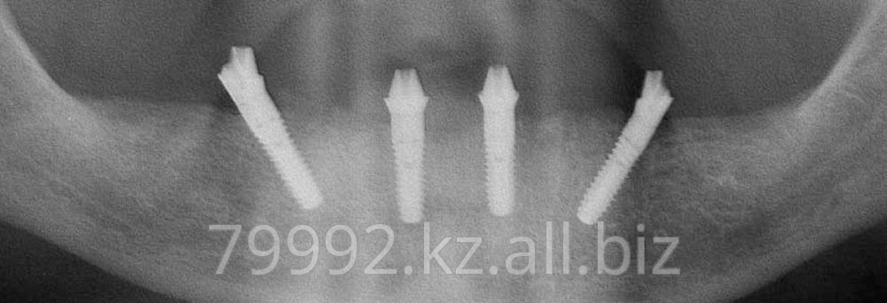 protezirovanie_zubov_za_odin_den