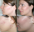 Service treatment of an acne of Elos